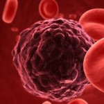 Nước điện giải với bệnh nhân ung thư