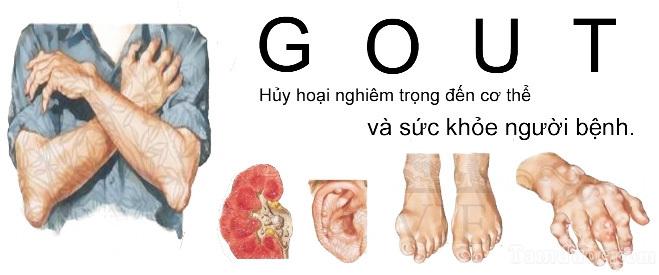 nhung-bien-hien-cua-benh-gut