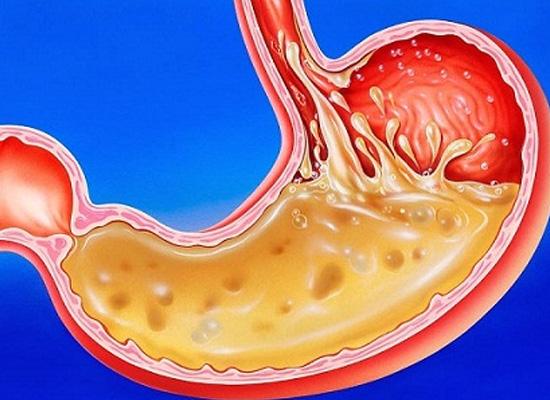 Nước hydro có tác dụng trong việc trung hòa lượng axit trong cơ thể